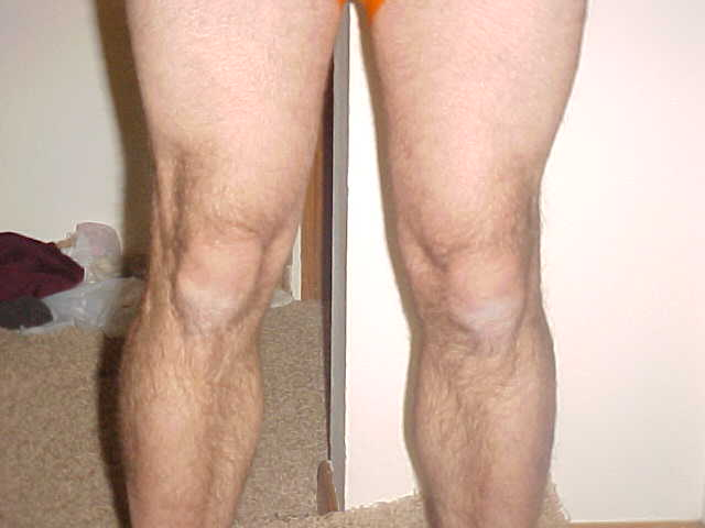 Orthopedics: I have started running after an year post ACL tear. What  symptoms should i pay attention to to prevent more damage to the said knee  or other ...